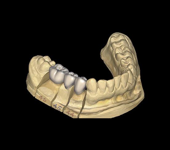DentalCAD